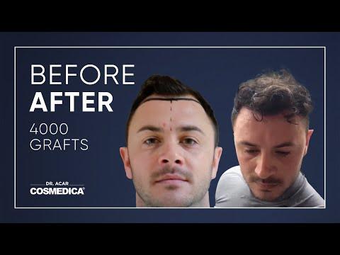 COSMEDICA DR.ACAR ,4000 Grafts  FUE Hair Transplant,Turkey-Istanbul