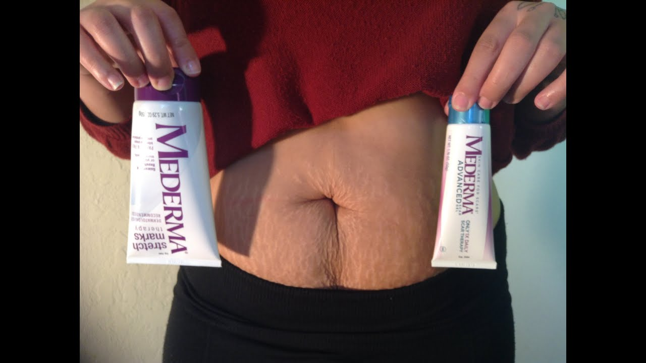 How To Remove Stretch Marks With Mederma Youtube