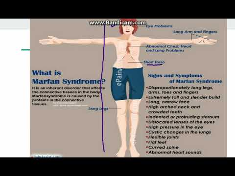 Marfan Syndrome - YouTube