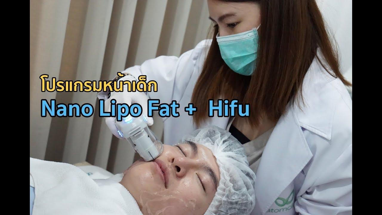 รีวิว เก็บเหนียงหน้าด้วย Nano Lipo Fat กับ Hifu ที่ Atom Clinic