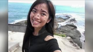 (VTC14)_Cô gái có hàng trăm nốt ruồi thi Hoa hậu hoàn vũ