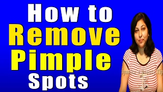 How to Remove Pimple Spots Thumbnail