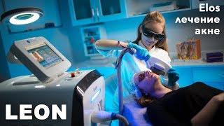 ЭЛОС лечение акне! Обзор аппарата Happy Light Leon!