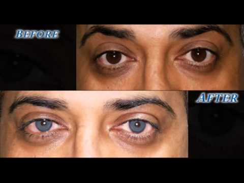 brightocular eye color change turquoise green by dr salman habash - Eye Color Change Surgery Before And After