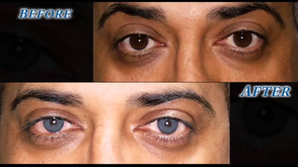 Brightocular Eye Color Change Turquoise Green By Dr. Salman Habash ...