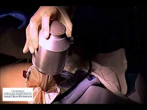 Poliklinika Harni - Rizik karcinoma povećan kod laparoskopske morselacije mioma