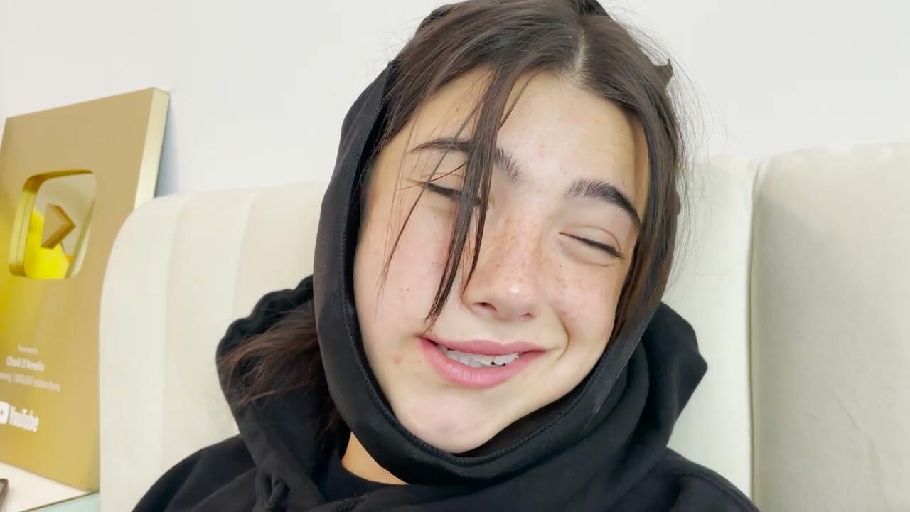 I Got My Wisdom Teeth Pulled | Charli D'Amelio