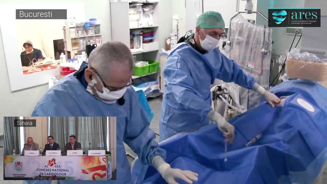 operaie de prostata clasica youtube video de