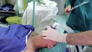 general anesthesia with endotracheal intubation