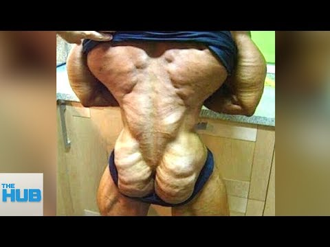 10 People Who Took Body Transformation WAY Too Far