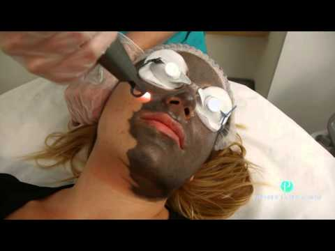 "Spectra Laser ""Hollywood Peel"" Treatment at Premier Laser Clinic"
