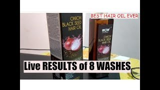 *New* Wow skin science Onion black seeds oil | best hair oil ever for hair fall control and growth