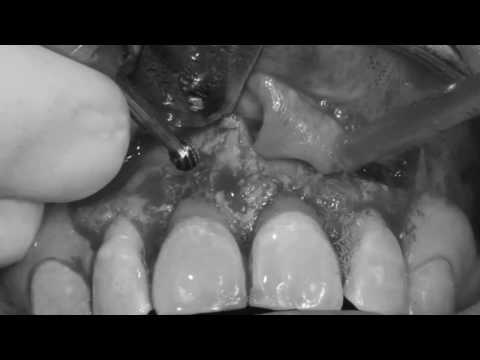 The apicoectomy: Root resection after root canal treatment