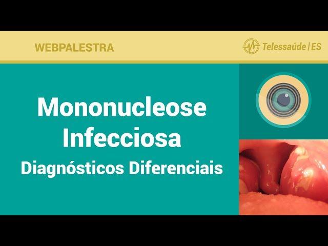 WebPalestra: Mononucleose Infecciosa Diagnósticos Diferenciais