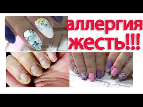 Дизайн ногтей МЫШОНОК. Аллергия на гель лак. Маникюр 2020