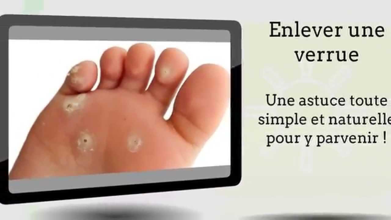 Atopitchesky la dermatite sur les pieds de lenfant de la photo
