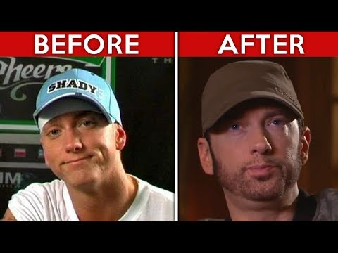 Here&39;s The Real Reason Why Eminem Looks So Different Now