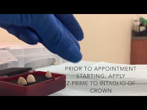 Cementing Anterior Crowns with Choice 2 LC