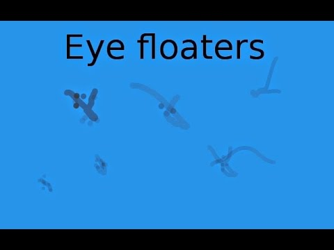How Do You Make Eye Floaters Go Away