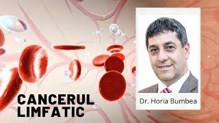 cancerul limfatic tratament