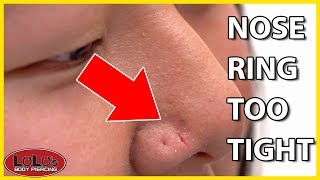 This Can Happen If Your Nose Ring Is Too Tight!!