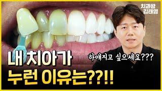 누렇게 된 치아 ! 새하얗게 하는 방법 | 원인과 예방…
