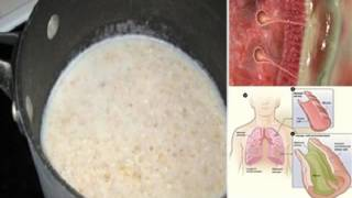 THIS SIMPLE DRINK WILL CLEAR MUCUS FROM YOUR IMMUNE SYSTEM