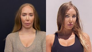 Video Woman Unhappy With Forehead Size Gets Reduction Surgery download MP3, 3GP, MP4, WEBM, AVI, FLV September 2018