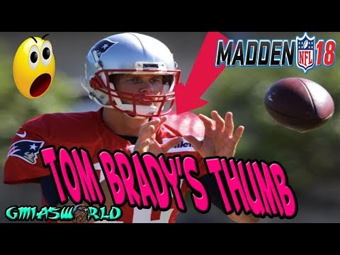 Tom Brady's Thumb Scary Hours During Weekend League Madden 18 Gameplay