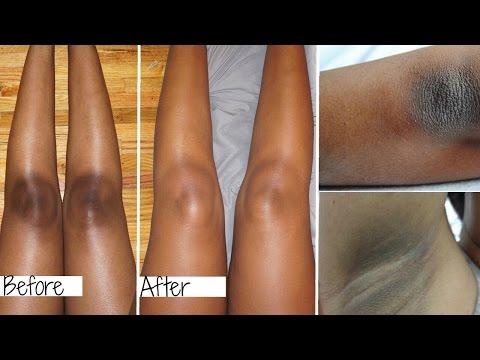 Lighten Dark Elbows, Knees & Underarms Fast!- Kojie Soap