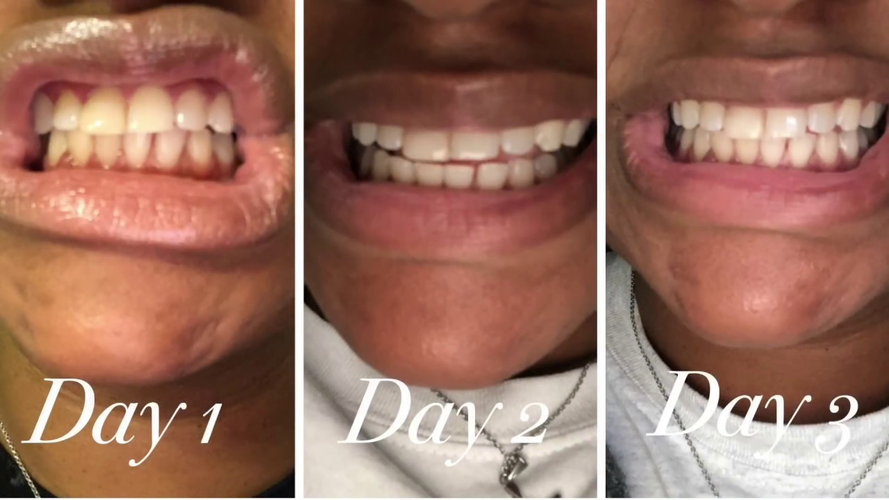 Diy Teeth Whitening Challenge For 8 Days Results Whitening Teeth