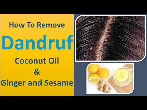 How To Remove Dandruff Quickly With Ginger   Ginger and Coconut Oil & Ginger and Sesame