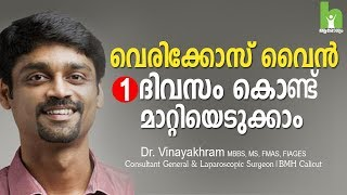 വെരികോസ് വൈൻ മാറ്റാൻ 2 വഴികൾ   varicose veins malayalam health tips