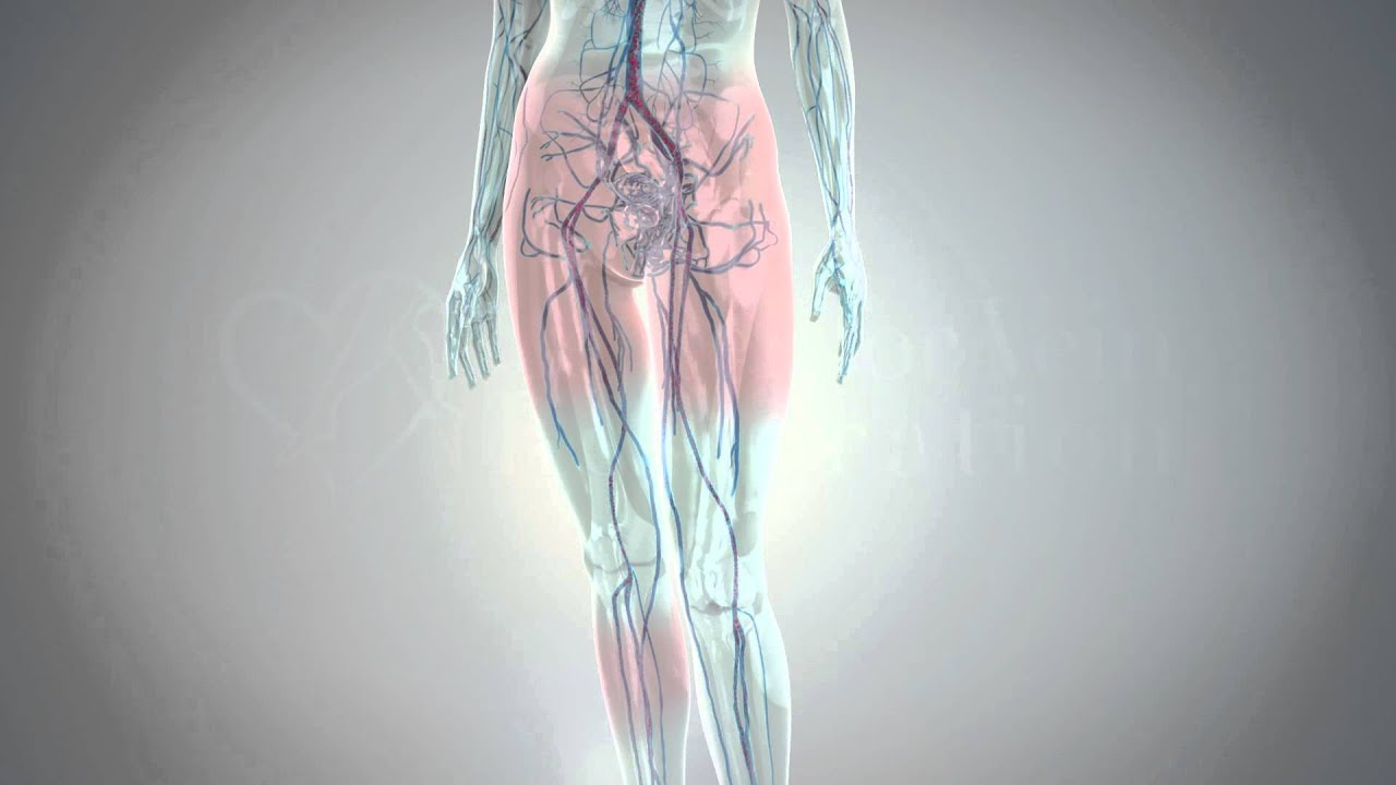 Varicose veins of the pelvis: causes, symptoms and treatment methods 84