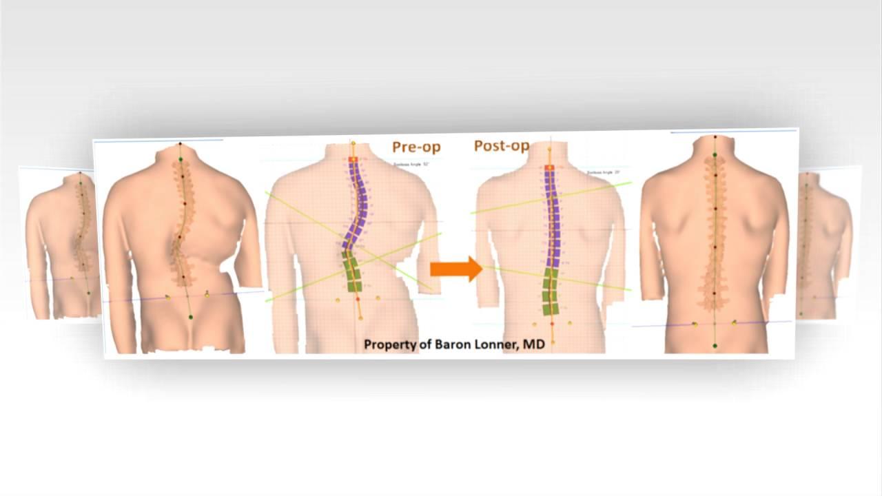 Vertebral Body Tethering In Progressive Adolescent Idiopathic