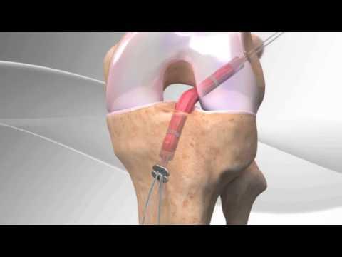 ligament DT4