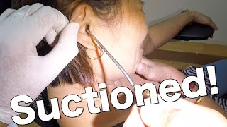 Woman's Hard Impacted Earwax Got Softened, Removed & Suctioned!