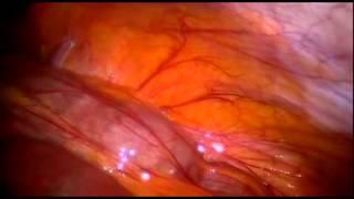 Inside the living body  fat heart thumbnail