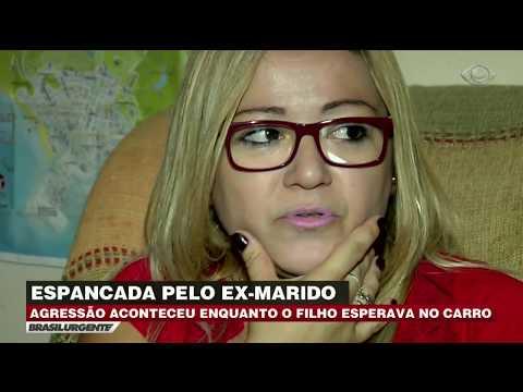Mulher é Espancada Por Ex-marido Após Briga Em SP