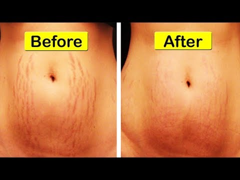 Top 10 Remedies for Stretch Marks | How to get rid of Stretch Marks