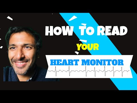 How to read your heart monitor trace
