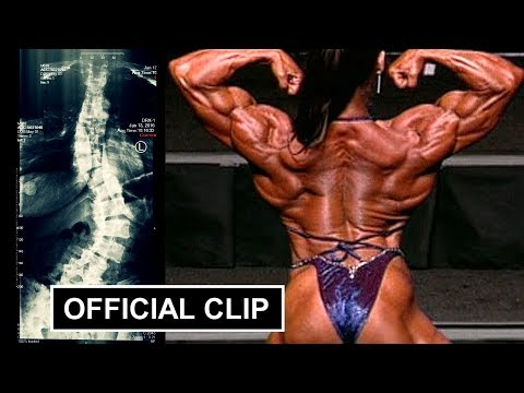 The Truth About My Back!  Pro female bodybuilder Denise Masino tells how she deals with Scoliosis