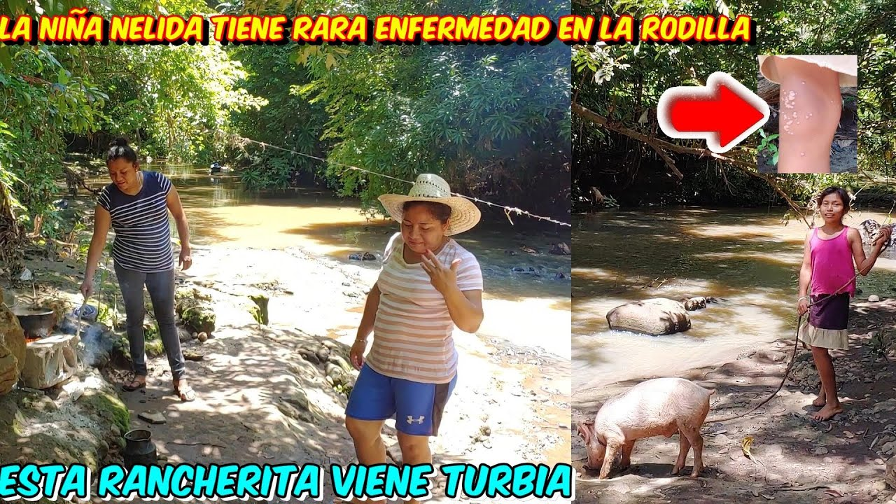 Wow Esta Rancherita Viene Mas Turbia que el Agua del Rio, Nelida tiene Algo Raro en Su Rodilla
