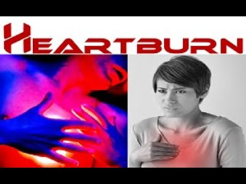 Homeopathic Treatment For Heartburn | Hyperacidity | How To Get rid of Heartburn By Homeopathy
