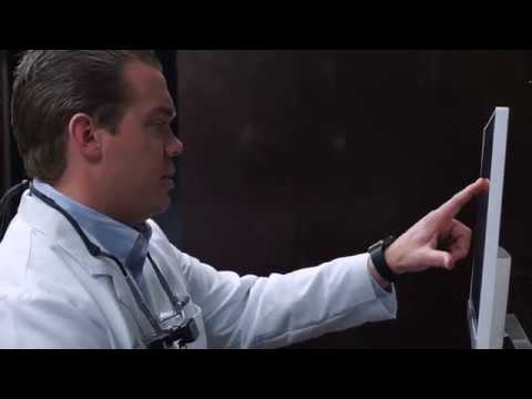 Dental Implants in Kansas City, Overland Park, and Leawood Kansas at Gordon Dental
