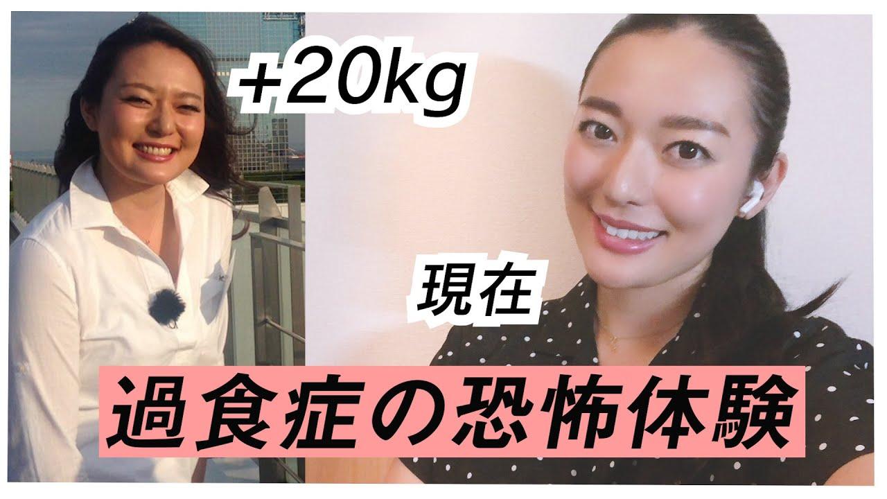 【過食症の恐怖】抑えられない食欲で20kg太ってしまいました