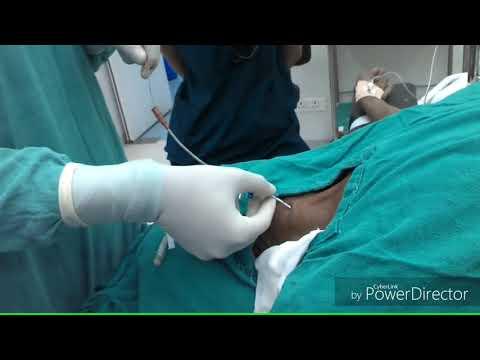 Internal Jugular Vein Catheterization, use of finder needle to locate vein
