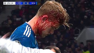 Horrific Head INJURIES In Football (CAREER ENDED!)