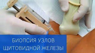 Пункционная биопсия узлов щитовидной железы в ЕМС(, 2014-01-29T08:14:42.000Z)