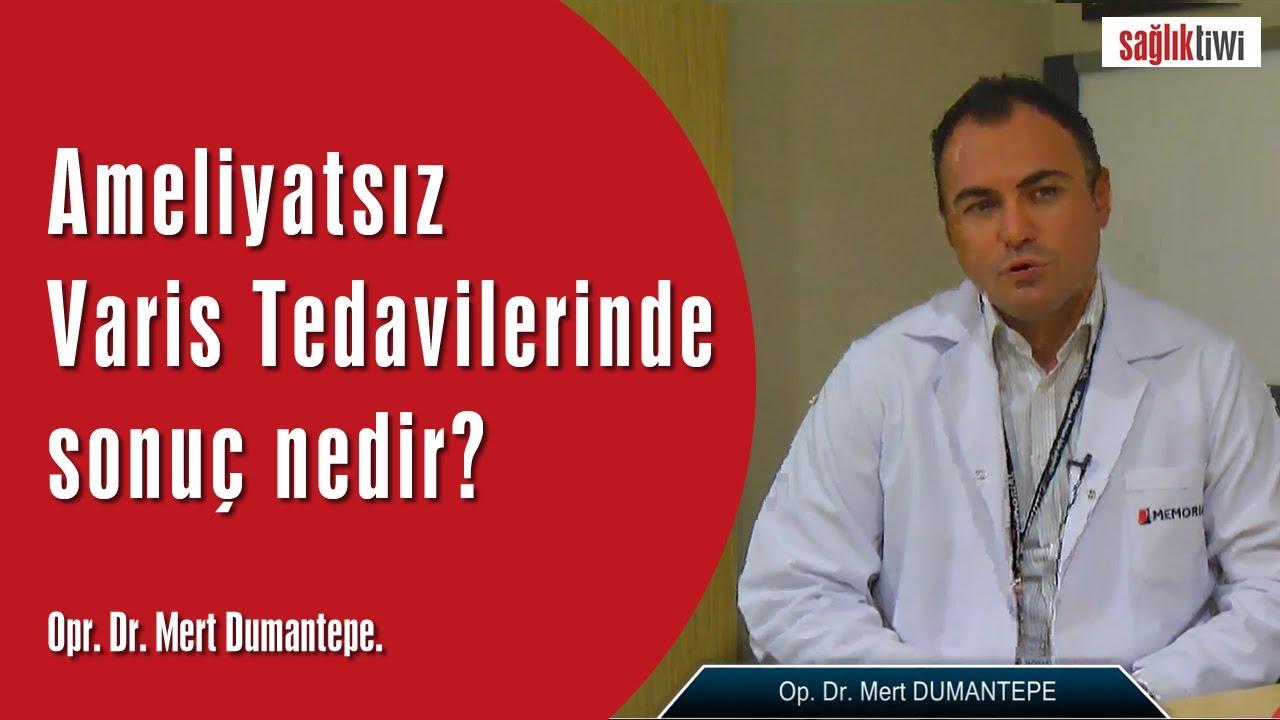 Ameliyatsız Varis Tedavilerinde sonuç nedir?SaglikTiwi  Opr. Dr. Mert Dumantepe
